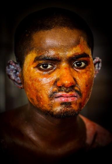 Victims of Petrol Bomb